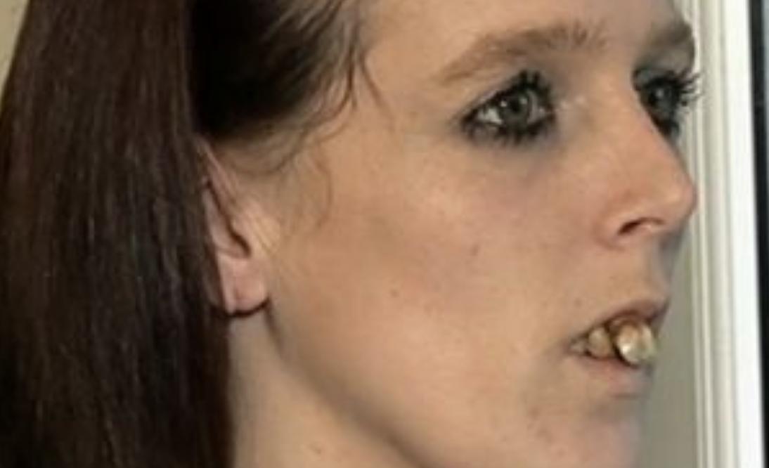 Insultata e derisa ovunque: quei denti le avevano reso la vita impossibile. Poi la scelta coraggiosa