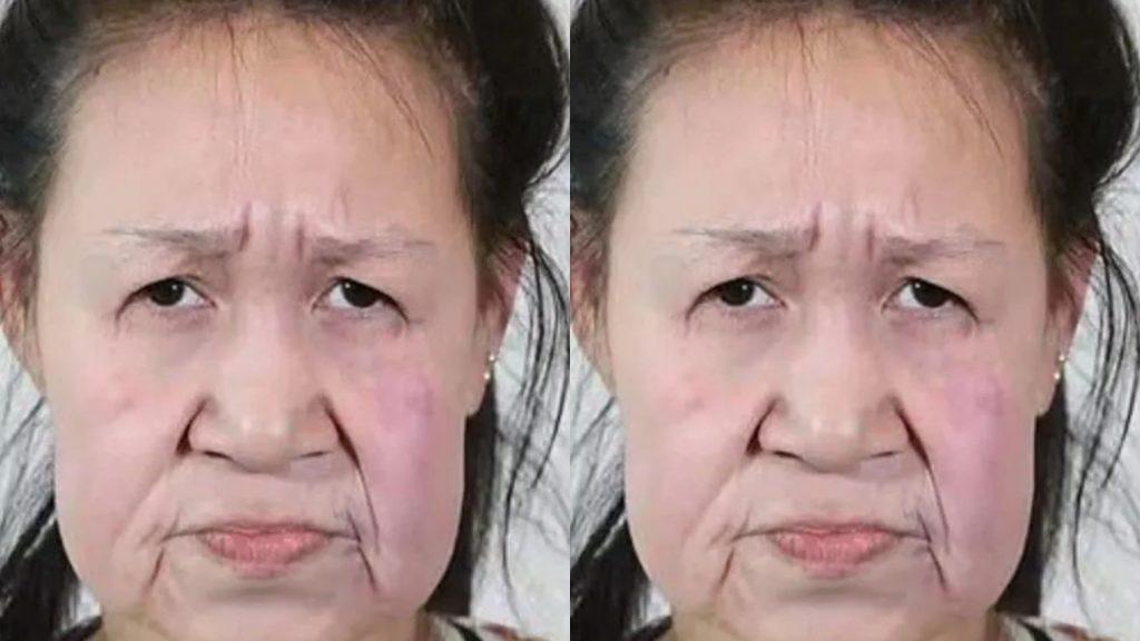 I danni della chirurgia. Non immaginerete mai la sua età. Purtroppo resterete a bocca aperta
