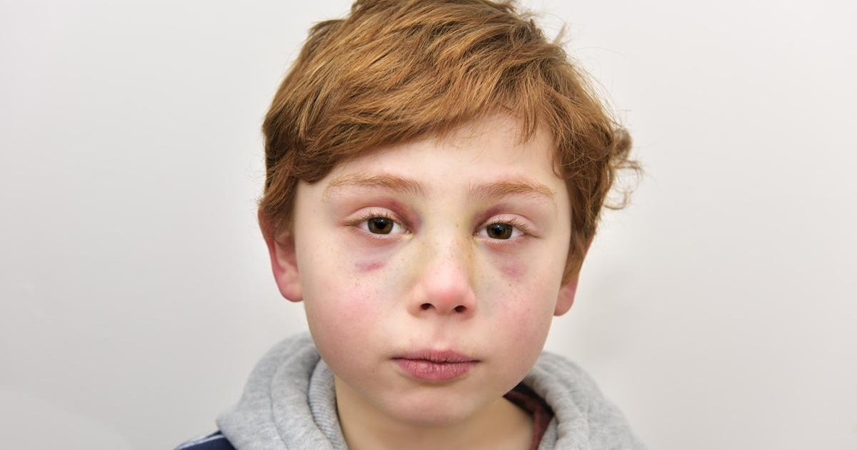 I genitori picchiano a morte il figlio di 7 anni – la lettera del bambino è straziante