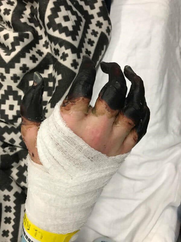 Il medico è costretto ad amputare le mani e i piedi di Kevin – per un'infezione contratta dal figlio di 3 anni
