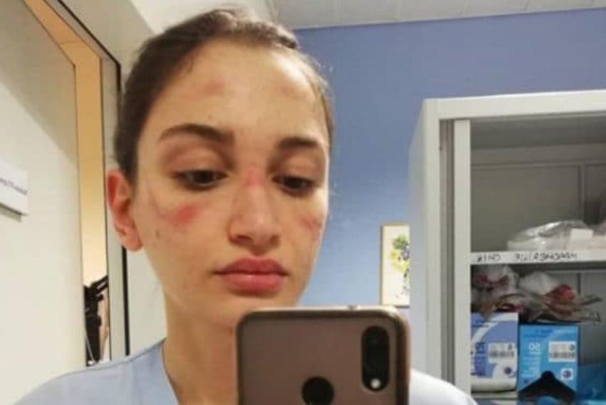 """L'infermiera coi segni della mascherina: """"Stanca, ma innamorata del mio lavoro"""""""