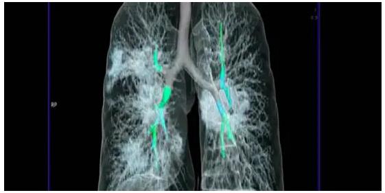 Polmoni pieni di muco: ecco come uccide il coronavirus