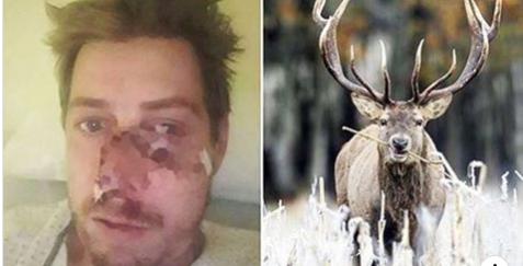 Cervo reagisce al cacciatore che vuole ucciderlo e lo sfigura: 50 punti di sutura al volto