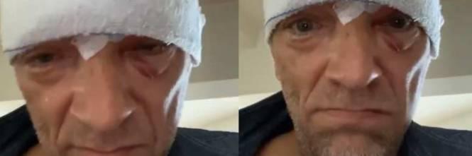 Vincent Cassel, l'ex di Monica Bellucci, un brutto incidente gli provoca un trauma cranico