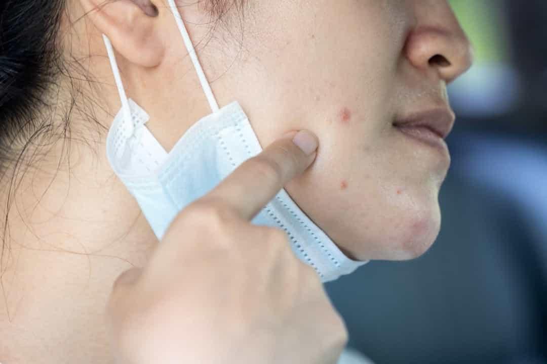 La mascherina causa l'acne? Ecco il parere degli esperti